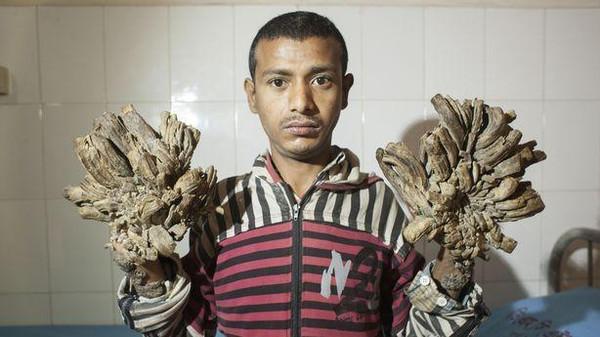 صورة مرض جلدي نادر يتسبب في ظهور الرجل الشجرة