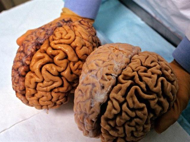 صورة دراسة استغرقت 20 عامًا.. الكسل يؤدي للتخلف العقلي