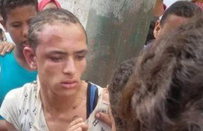 صورة حرامى التكاتك يتهم 3 أشخاص بالاعتدء عليه وحلق شعر رأسه بكفر الشيخ