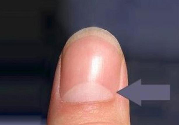 صورة ماذا يعني هذا الهلال الأبيض على الأظافر