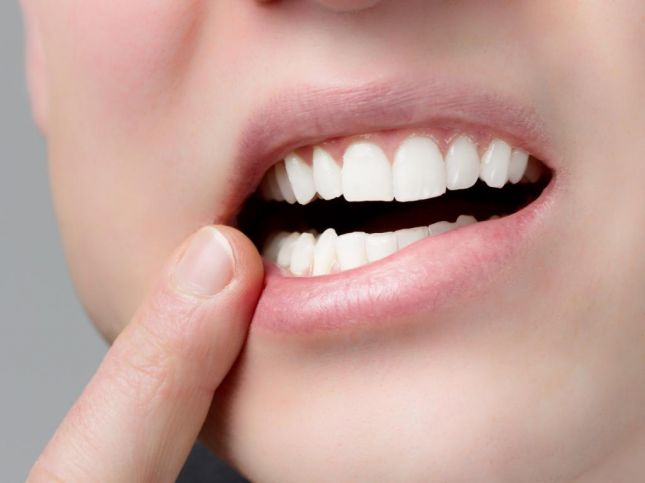 صورة 3 وصفات طبيعية للقضاء على تقرحات الفم