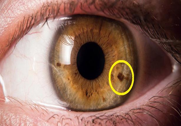 يعني ظهور هذه النقاط على حدقة العين؟