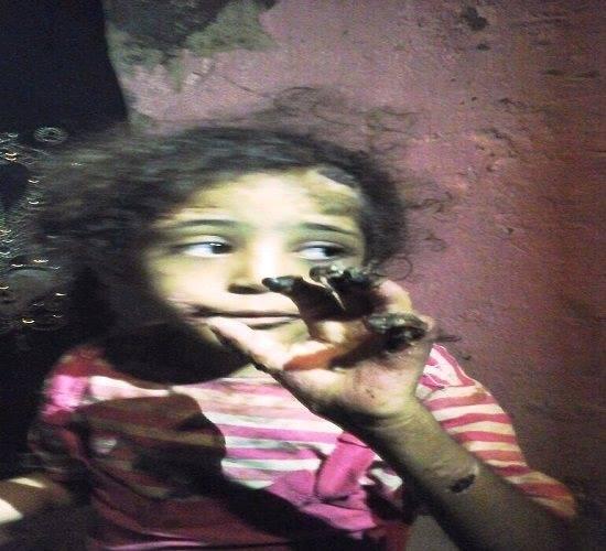 صورة بالصور.. مصري يعذب طفلته حرقاً بسبب تناولها لطعام أخيها ببني سويف