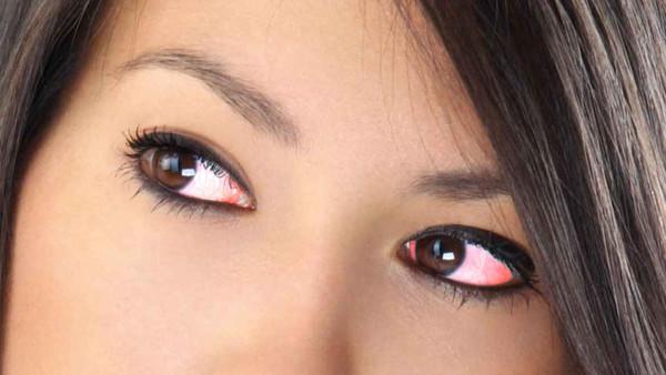 7 أسباب لاحمرار العينين يجب أن تعرفها