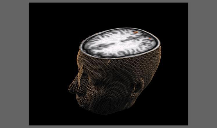 صورة مفاجأة.. مخ الإنسان قد يقتله ببطئ