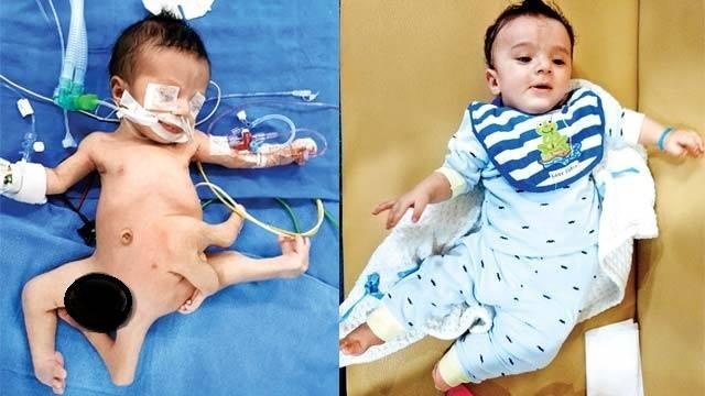 صورة نجاح أول عملية جراحية في العالم لطفل عراقي مولود بـ8 أطراف