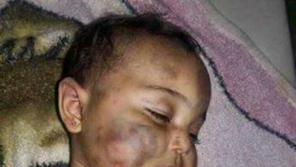 سوري يقتل طفلته عضاً
