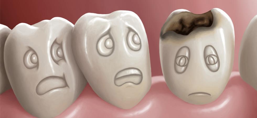 صورة هذا ما يحدث إذا لم تعالج أسنانك المسوسة.. احذر من إهمالها