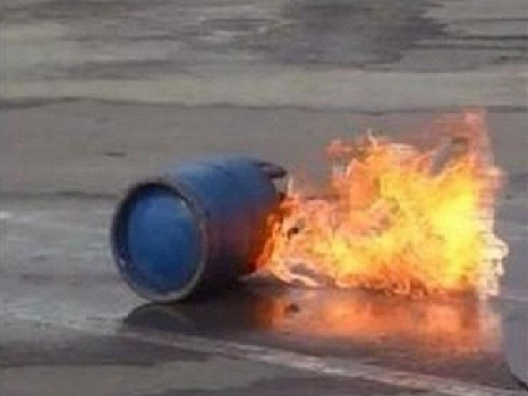 صورة إصابة مواطن في انفجار أسطوانة بوتاجاز بالشرقية