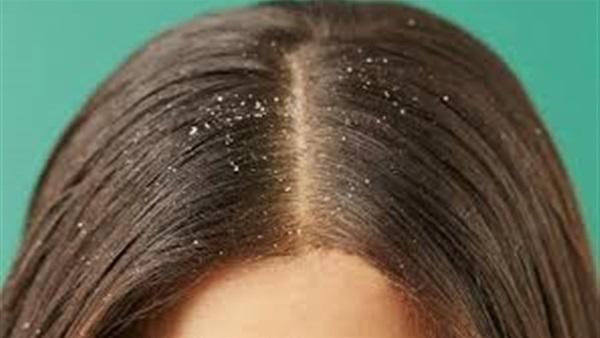 صورة أسهل طريقة للتخلص من قشرة الشعر بالمنزل