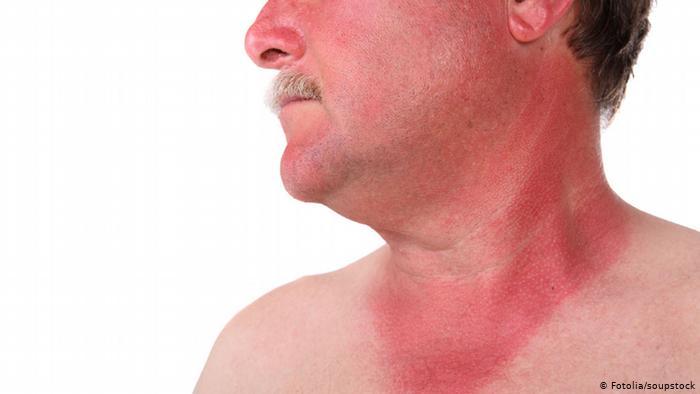صورة 6 نصائح ذهبية لحماية البشرة من أشعة الشمس الحارقة