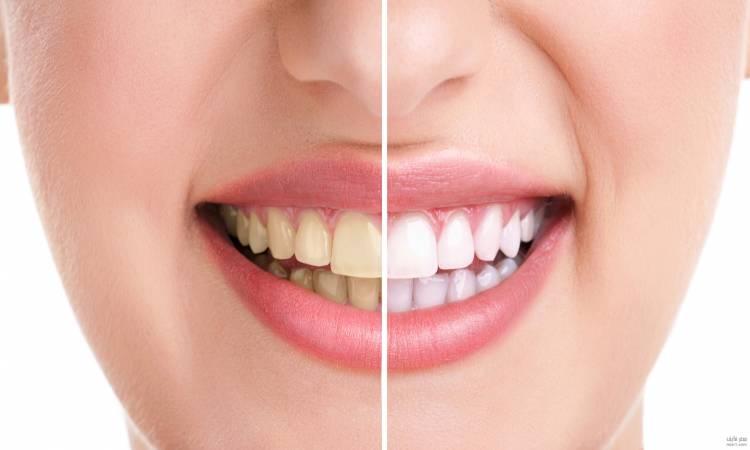 صورة وصفة لإزالة الجير وتسوس الأسنان نهائيًا