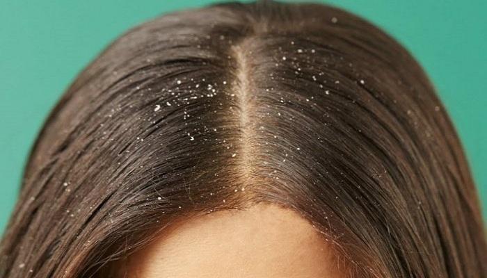 صورة بمكونات المطبخ يمكنك التخلص من قشرة الشعر