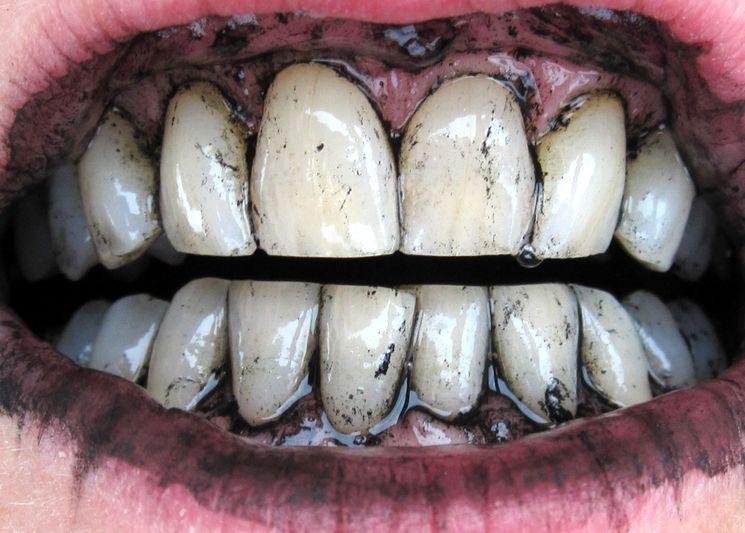صورة 4 أضرار للفحم على الأسنان أبرزها سرطان الفم