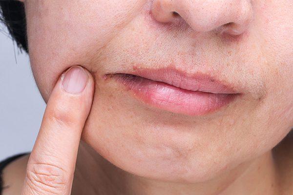 ظهور الأعراض المعروفة.. علامة جديدة فى الفم تدل على كورونا