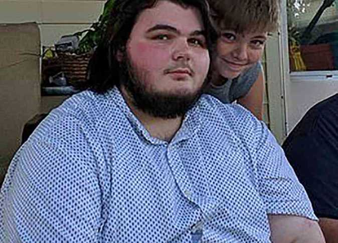 صورة بالبطاطس والماء.. شاب يفقد 100 كيلو من وزنه خلال 14 يوما