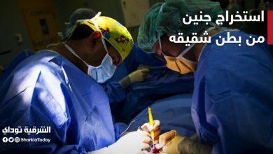 """صورة استخراج جنين من بطن شقيقه في محافظة الشرقية """" تعرف على التفاصيل بالفيديو"""""""