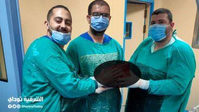 صورة استئصال ورم بالكلى يزن 6 كيلو ونصف من سيدة بمستشفى جامعة الزقازيق