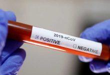 موعد التخلص من فيروس كورونا
