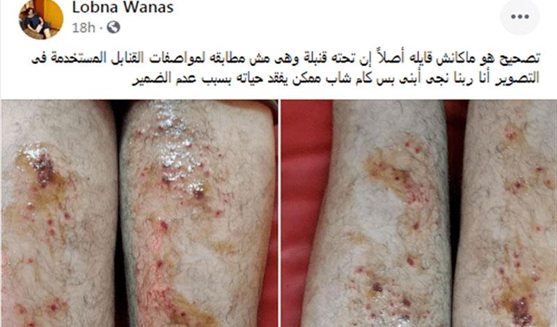 تفاصيل إصابة الممثل الشاب يوسف عمر بحروق خطيرة في إعلان محمد رمضان