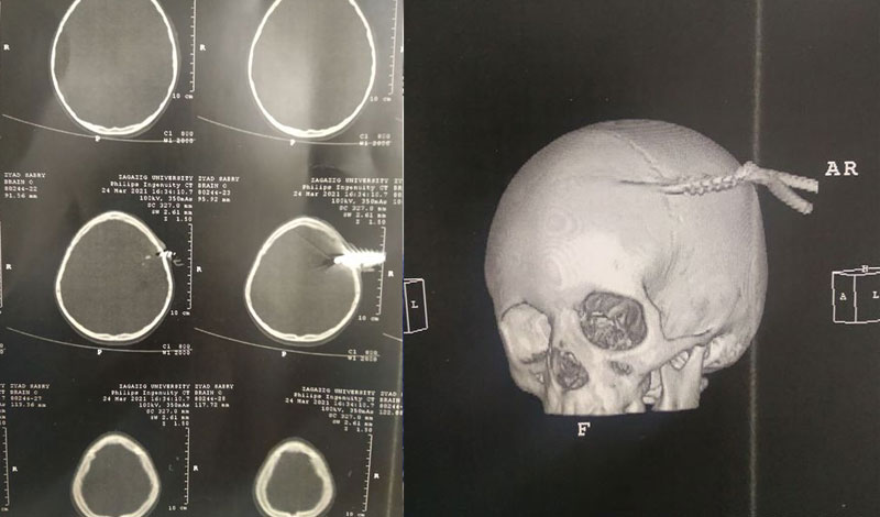 فريق طبي بمستشفيات جامعة الزقازيق ينجح في استخراج سيخ حديد من جمجمة طفل