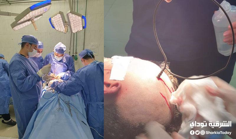 طبي بمستشفيات جامعة الزقازيق ينجح في استخراج سيخ حديد من جمجمة طفل 3